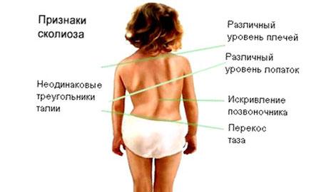Лечение аденоидах народными средствами