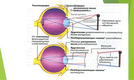 Очки при близорукости какие линзы