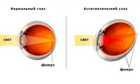 Улучшение зрения глаз глаукома
