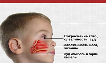 Как лечить вазомоторный ринит у детей в домашних условиях