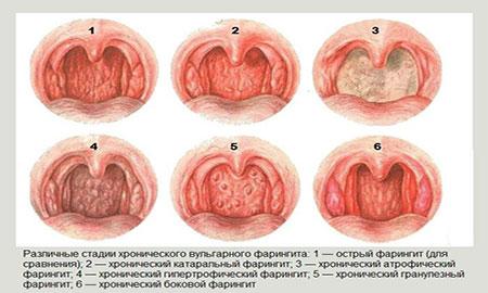 Фарингит у детей - симптомы и лечение 3