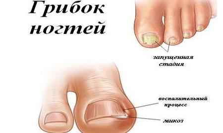 Грибок ногтей на ногах запущенная стадия чем лечить в домашних условиях