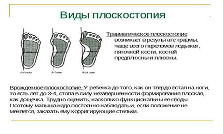 Лечение плоскостопия у детейЛечение ребенка - детские болезни ...