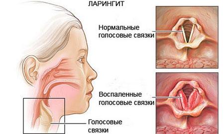 Стрептококк на коже чем лечить