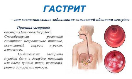 Гастрит у грудничка симптомы