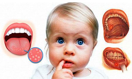 Болезни во рту у детей